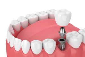 A dental implant image