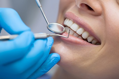 Woman in dental chair for preventive appointment.