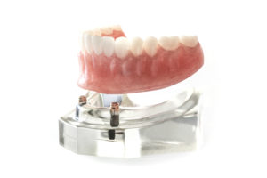 Model of a denture attached to implants